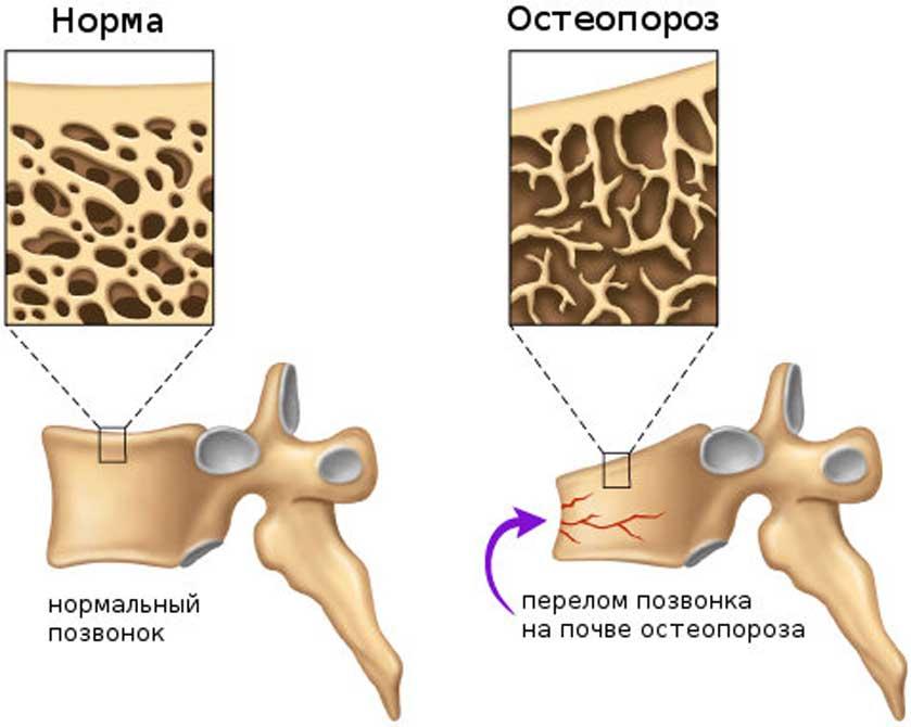 Рекомендації по медикаментозному лікуванню та профілактиці ОСТЕОПОРОЗУ